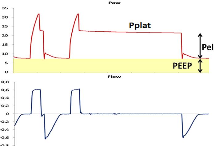 Fig. 1.13 corretta